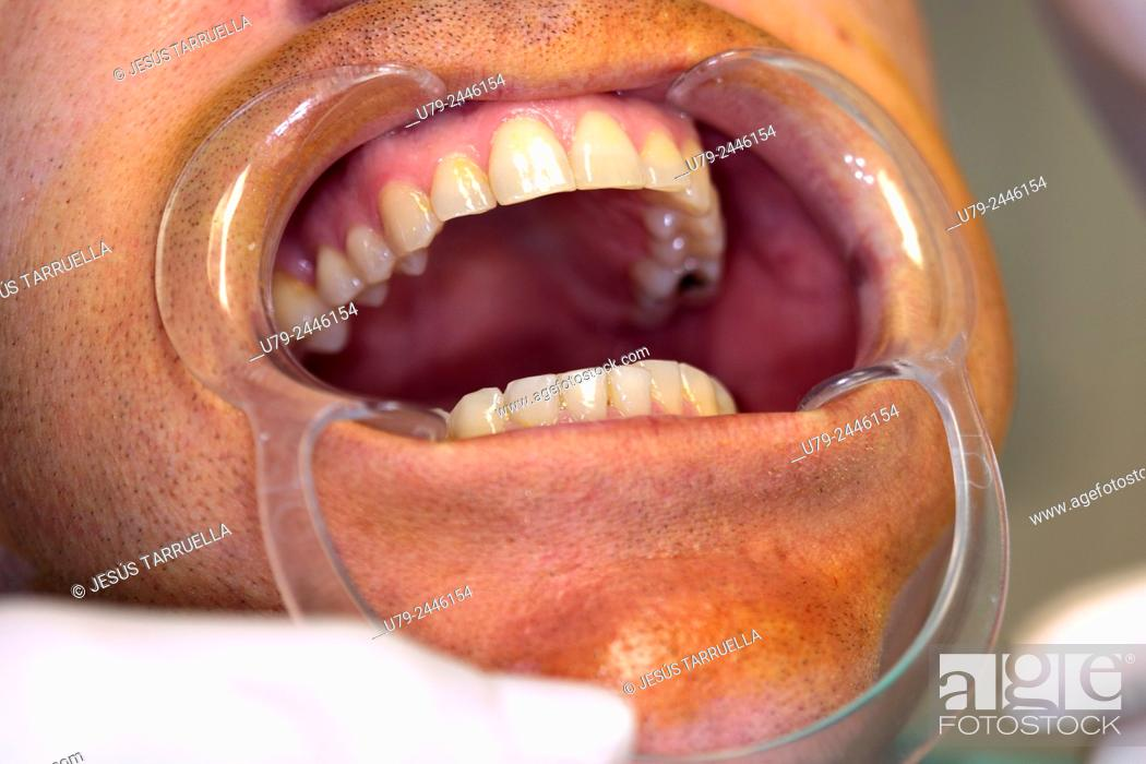 Stock Photo: Dental implant surgery.