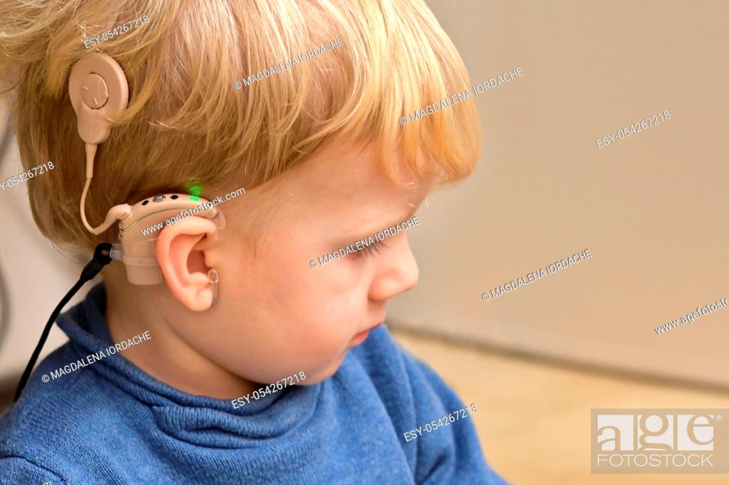 Stock Photo: A Boy With A Hearing Aids And Cochlear Implants.