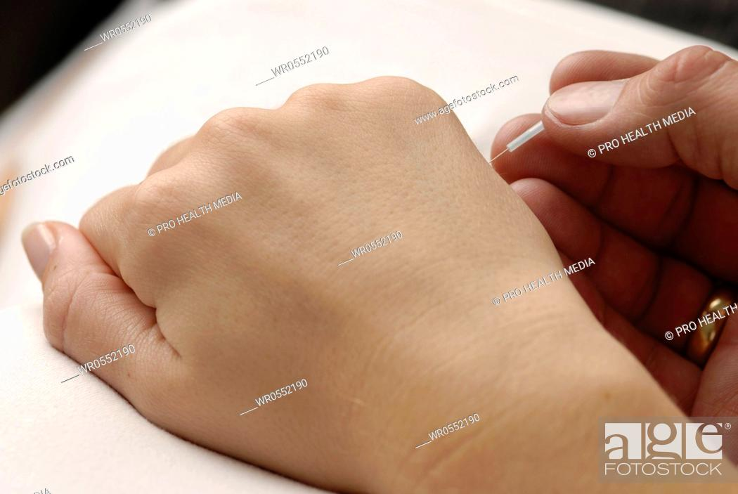 Imagen: Acupuncture on the back of the hand - EX - UE 7.