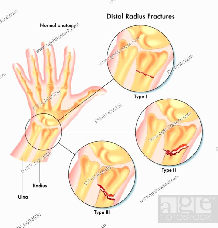 Fracture wrist radius Stock Photos and Images | age fotostock