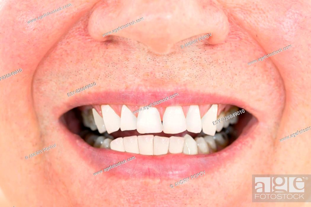 Stock Photo: Close-up Of A Senior Man Showing His Teeth.