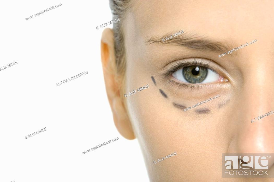 Stock Photo: Young woman with plastic surgery markings under eye, cropped view.