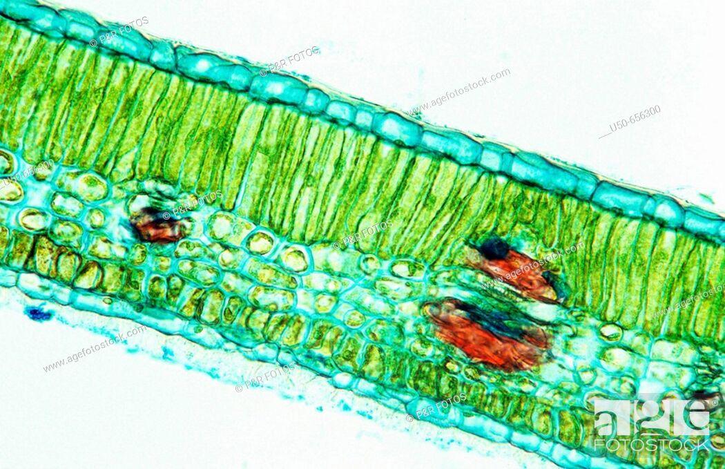 Ficus Elastica Leaf Cystolith Stone Cell Vascular Bundle