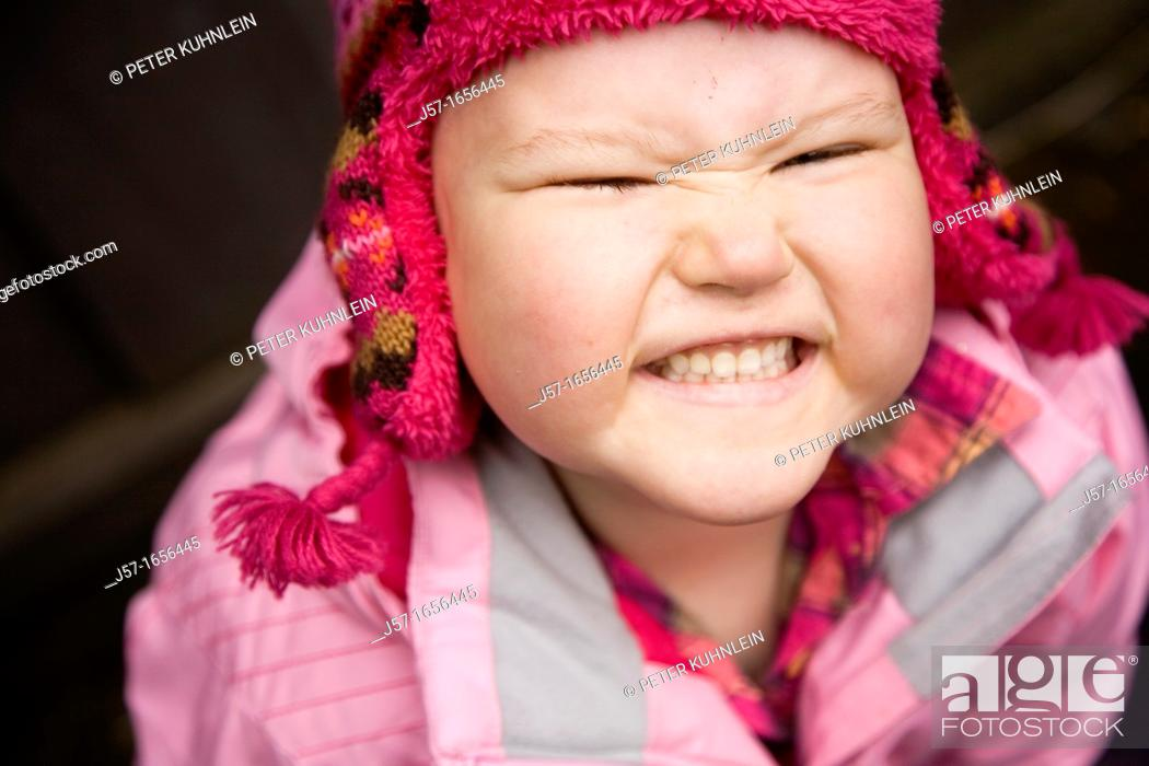 Stock Photo: Portrait of a young girl with pediatric cancer leukaemia smiling at the camera  She has just lost her hair after a strong dose of chemo therapy but is still.