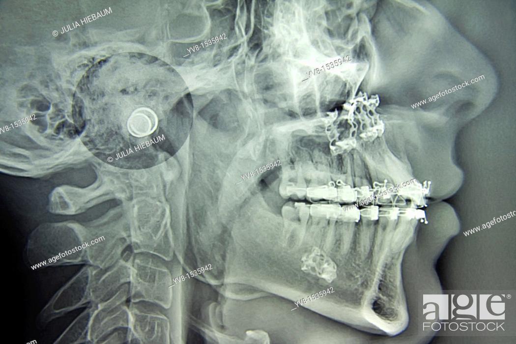 Stock Photo: Maxillofacial Surgery.