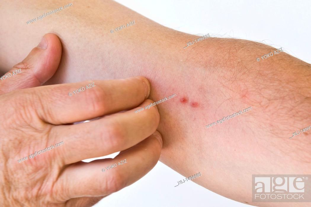 Imagen: insect bites.