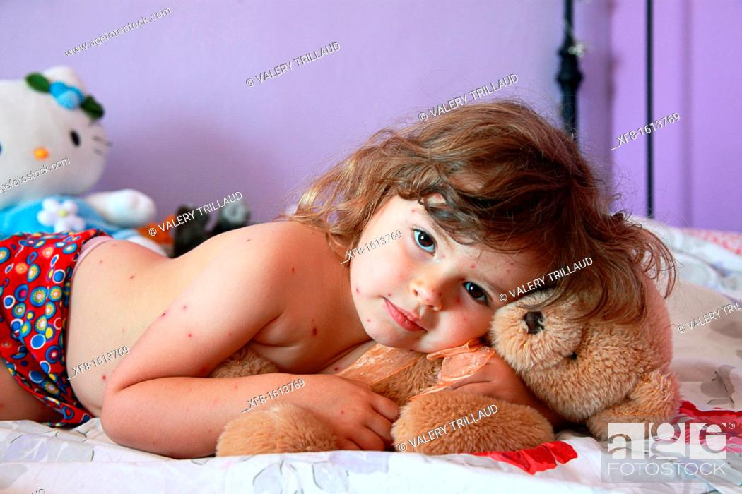 Stock Photo: 3 year old girl with chickenpox.