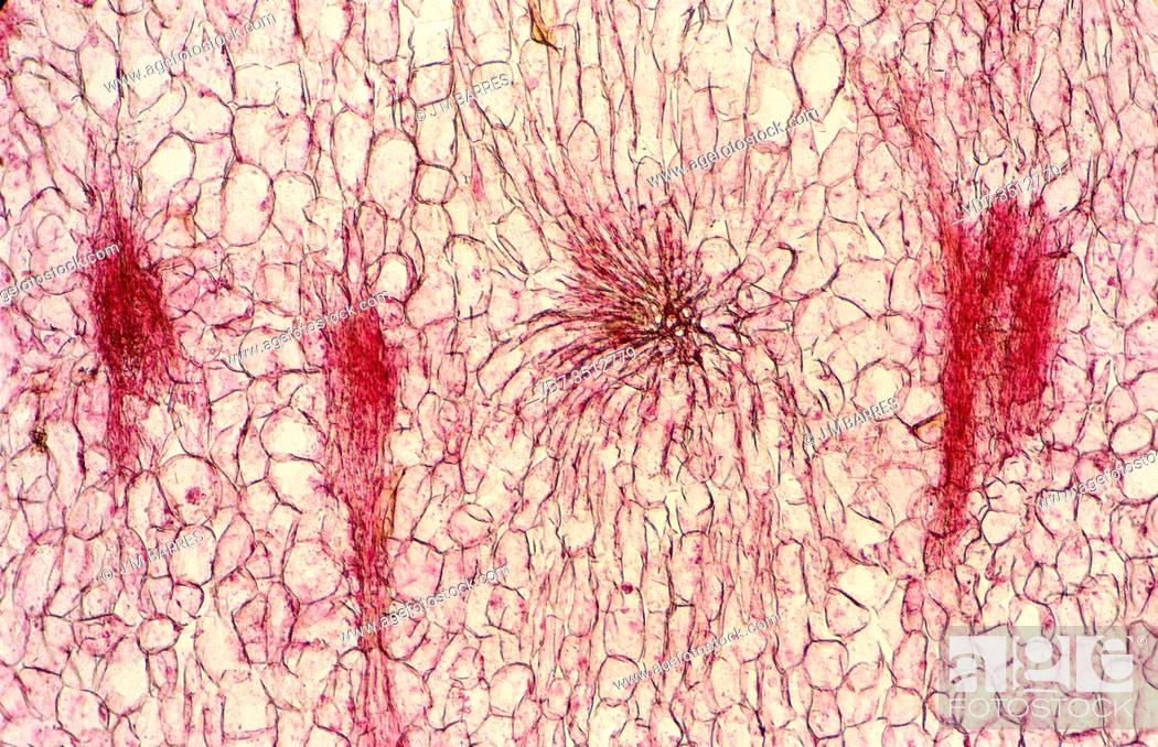 Stock Photo: Sclerenchyma is a support tissue with lignified cellular walls. Photomicrograph.