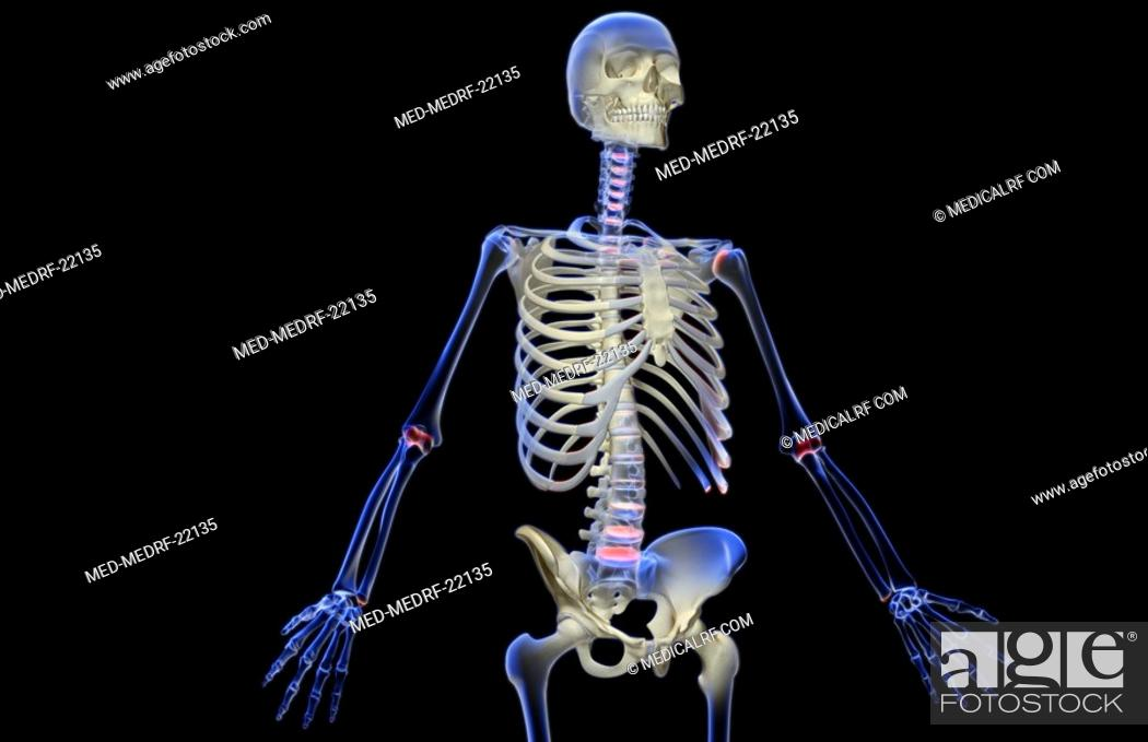 Stock Photo: The bones of the upper body.