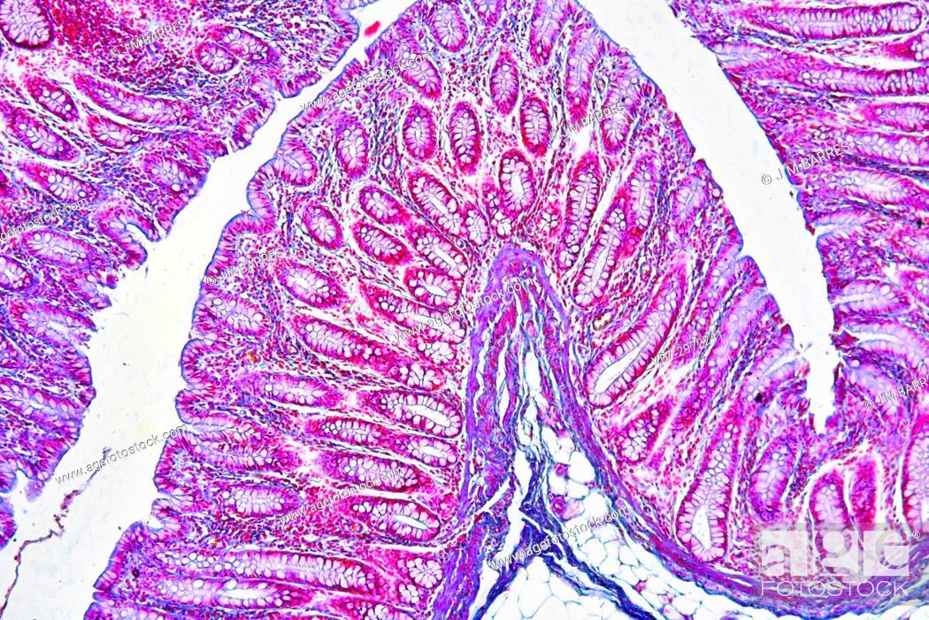 Human Colon Showing Epithelium Mucosa Submucosa Adipose Tissue