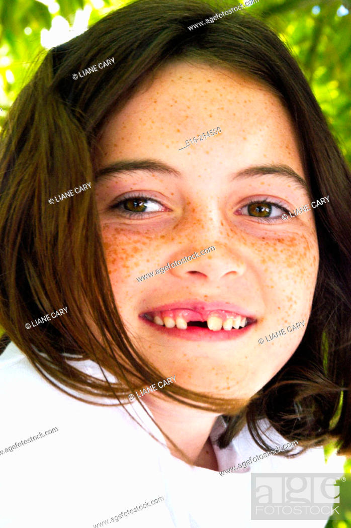 Stock Photo: young girl without tooth.