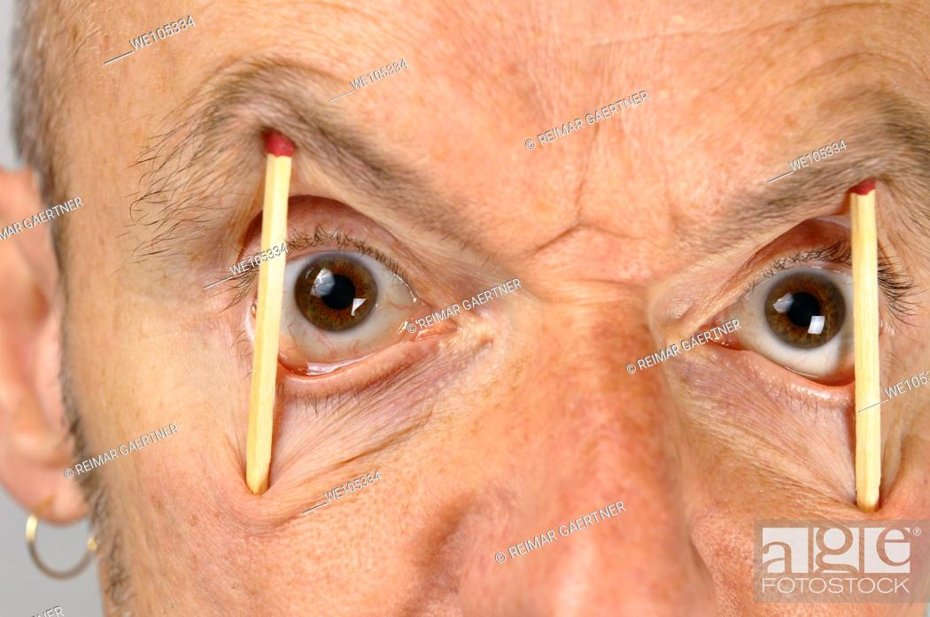 Stock Photo: Close up of man keeping eyes wide open with match sticks.