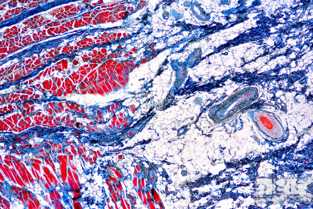 Imagen: Rectum (large intestine) showing connective tissue, muscular tissue, adipose tissue and vessels. Optical microscope X40.