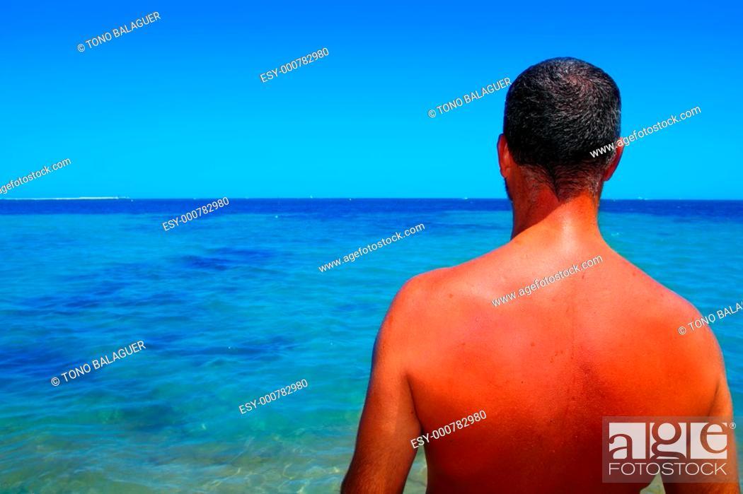Photo de stock: tanned sunburned red skin man back summer vacation sea ocean.