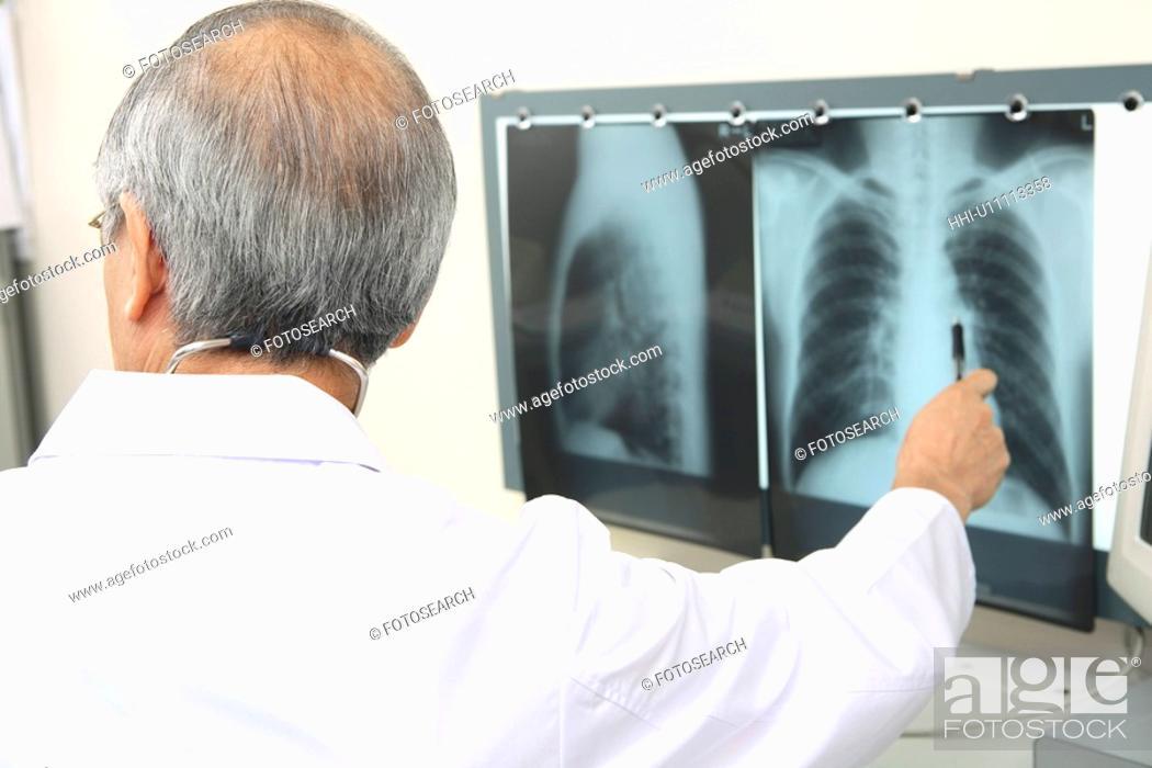 Stock Photo: Physician explaining an X-ray.