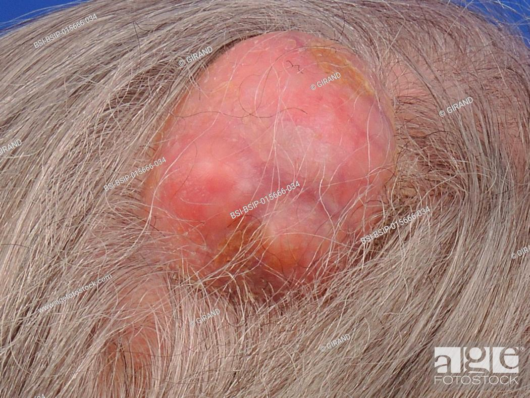 Scalp pilar cyst, Stock Photo, Picture And Rights Managed