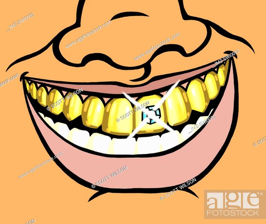 Stock Photo: An illustration of a wide smile and a diamond encrusted tooth.