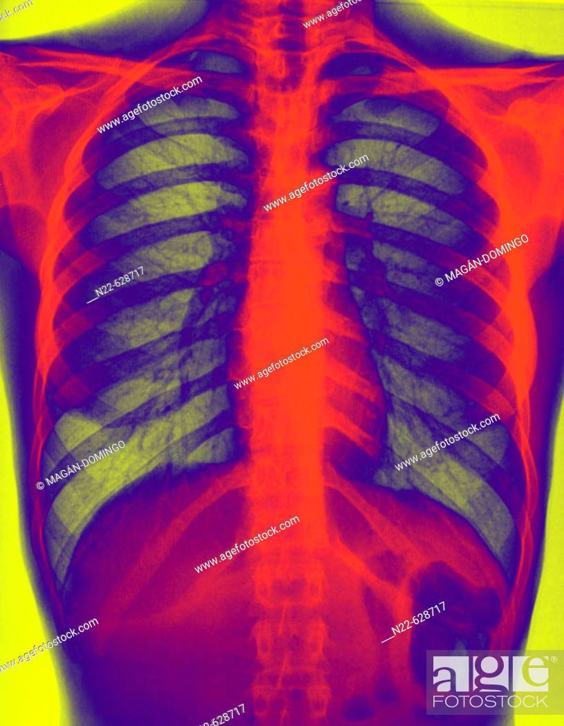 Stock Photo: Thorax X-rays.