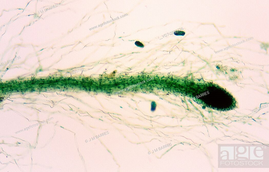 Imagen: The calyptra or root cap protect growing tip in plants. Optical microscope, magnification X40.