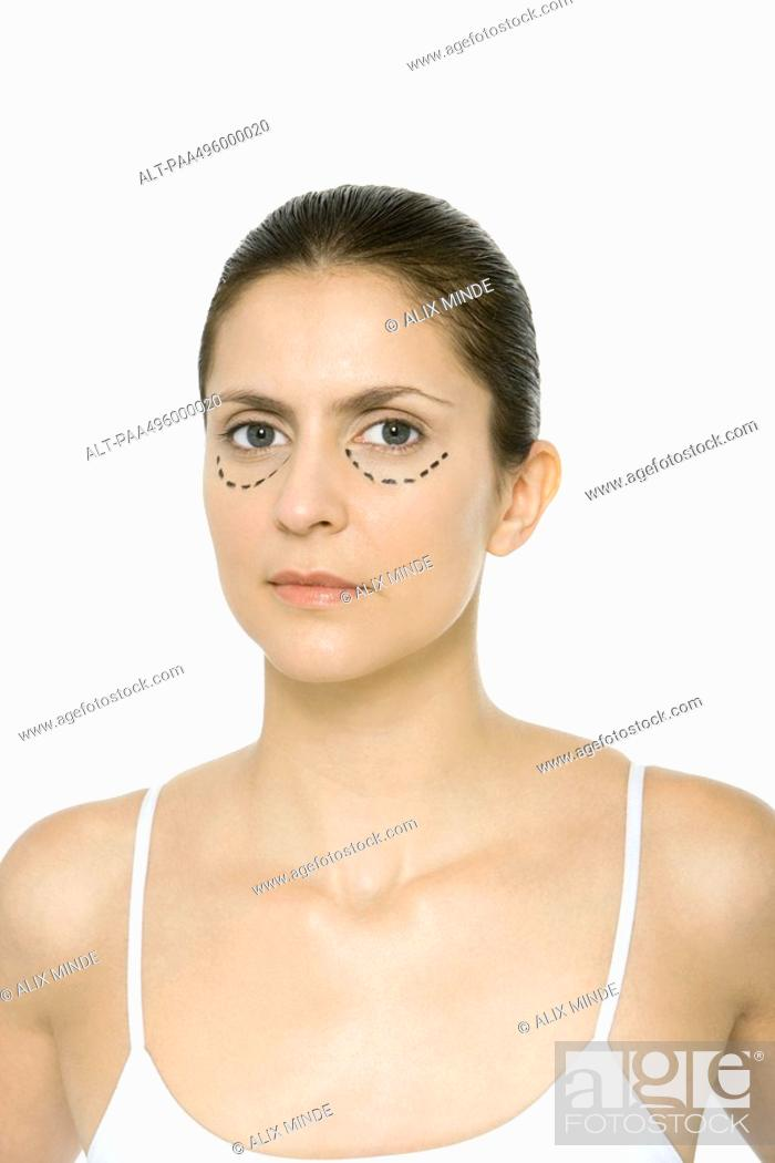 Stock Photo: Woman with plastic surgery markings under her eyes, portrait.
