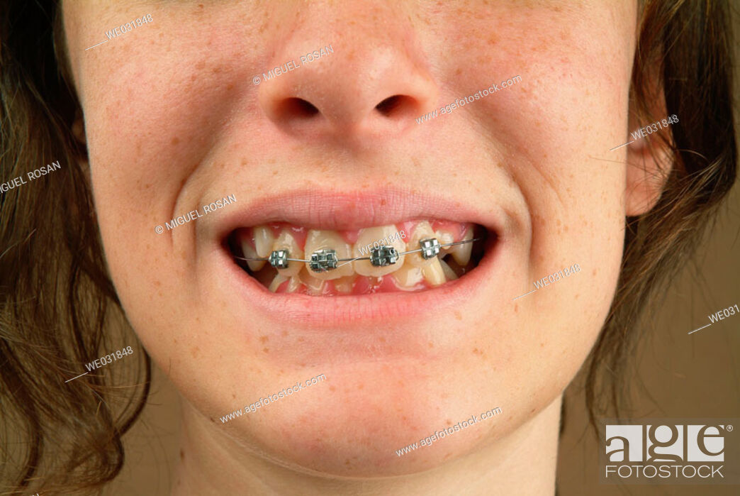 Stock Photo: Close the mouth with braces of a teenage girl.