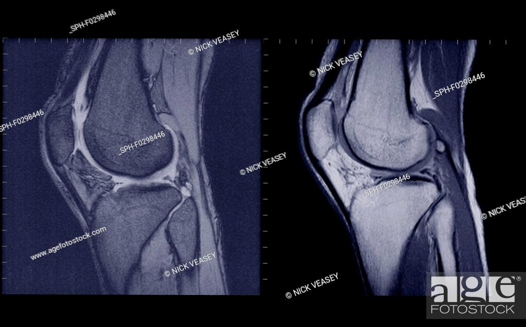 Stock Photo: Knee joints side view, MRI.