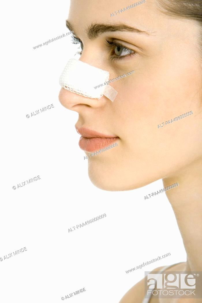 Stock Photo: Young woman with bandaged nose, profile, cropped.