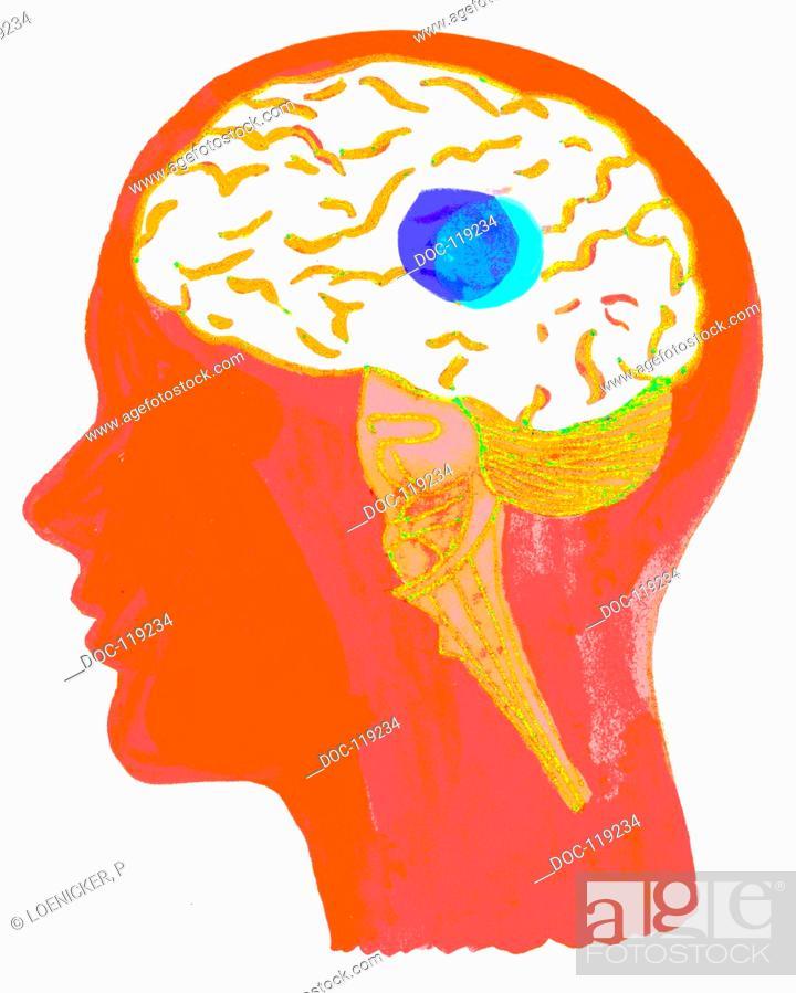 Illustration Symbol Fr Multiple Sclerosis Disseminated