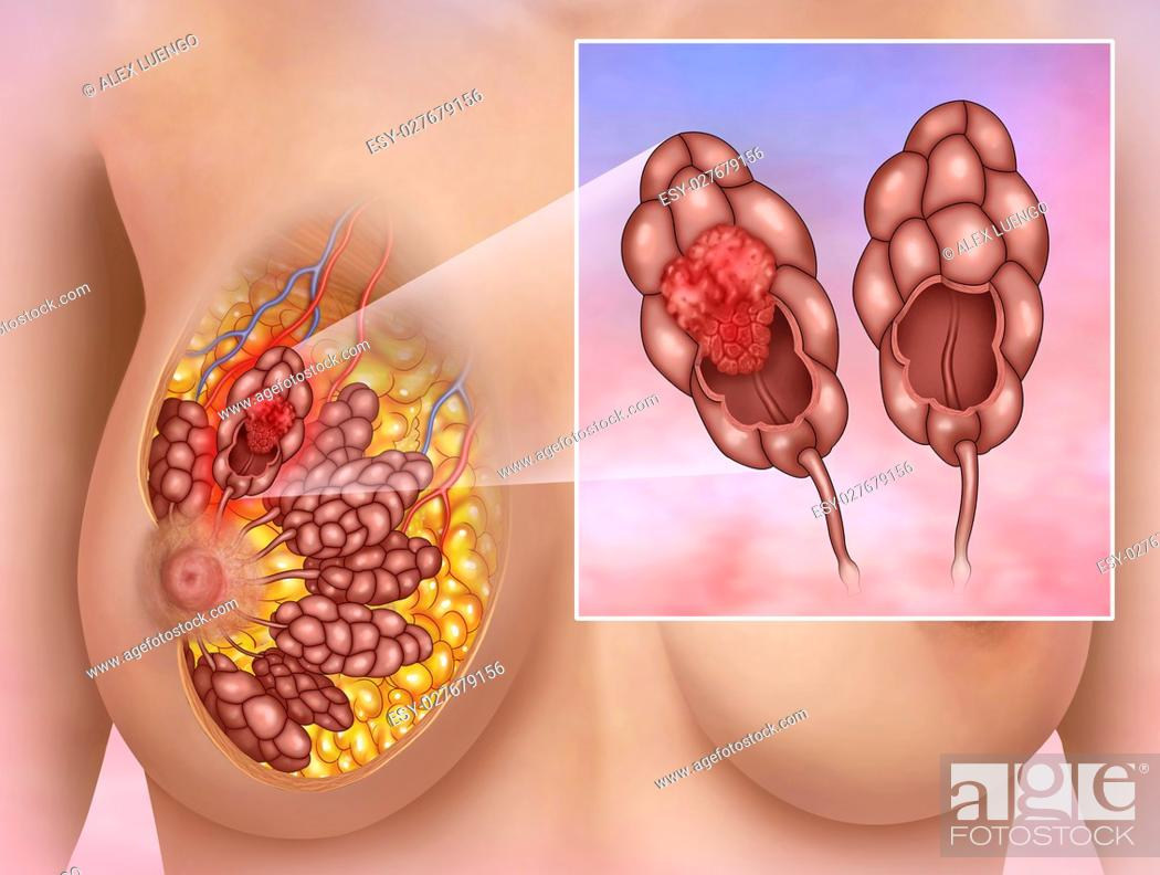 Stock Photo: Illustration of a woman with a breast lobular carcinoma.