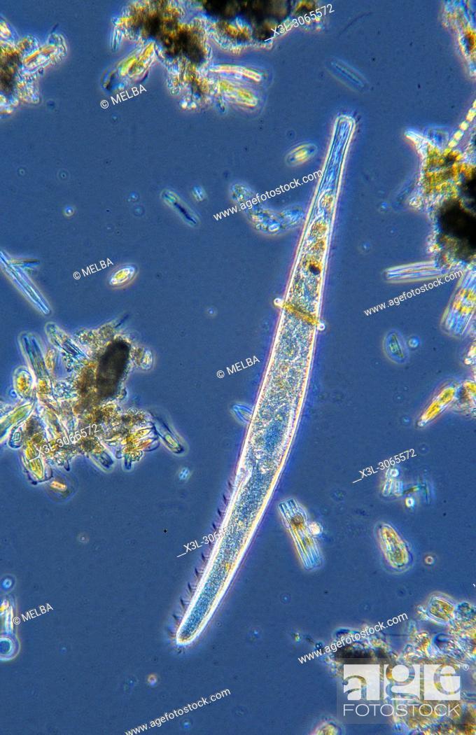 Stock Photo: Spirostomum. Ciliata. Protozoans. Optic microscopy.