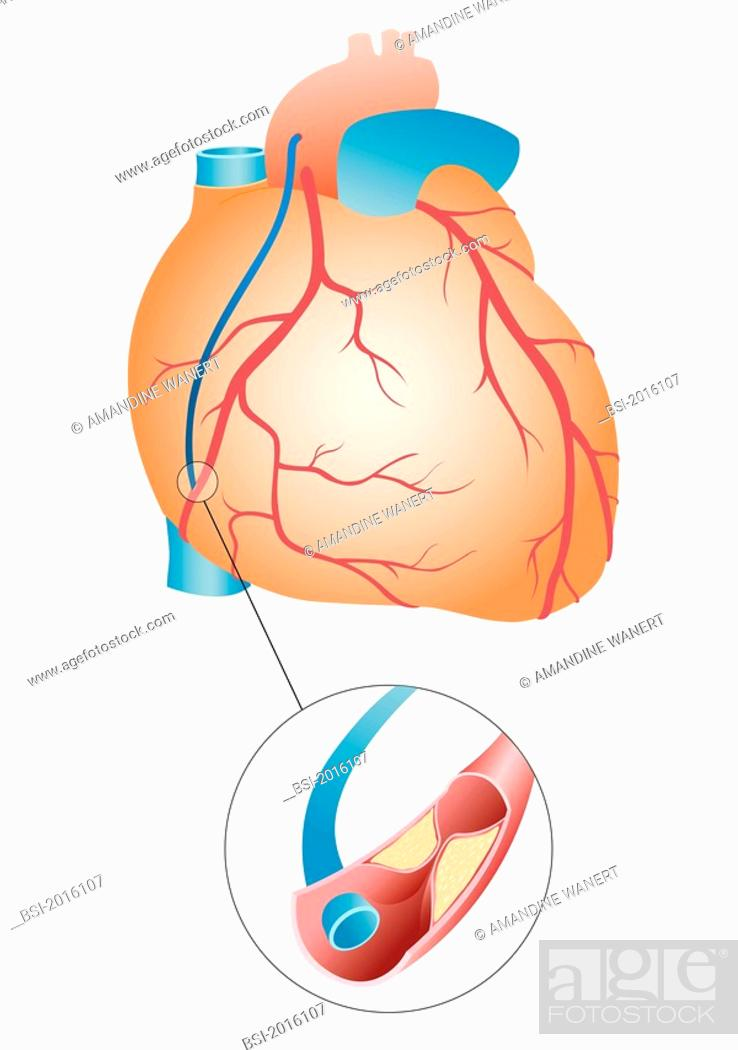 BY-PASS, ILLUSTRATION Aortocoronary bypass following a myocardial ...
