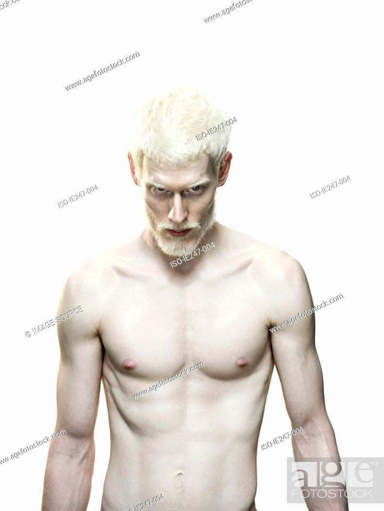 Stock Photo: Albino man.