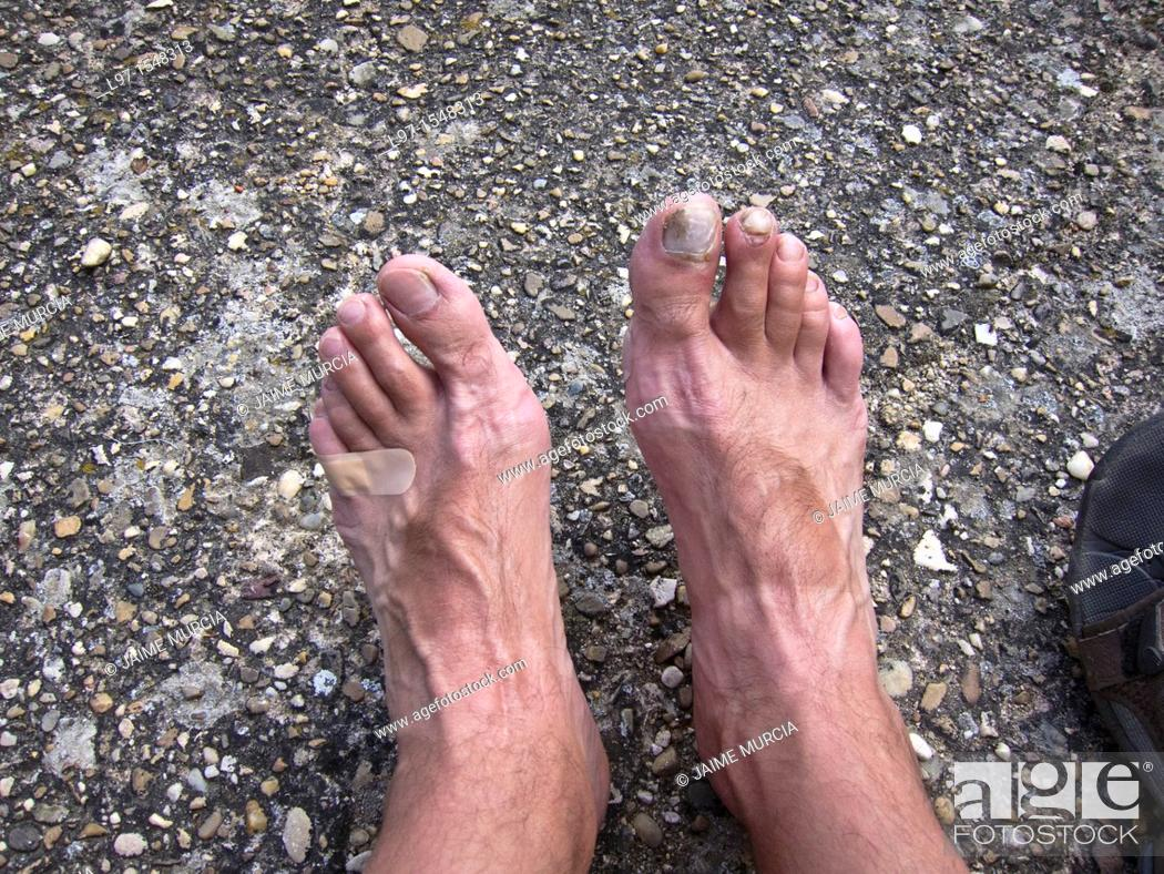 Stock Photo: Persons feet with blisters.