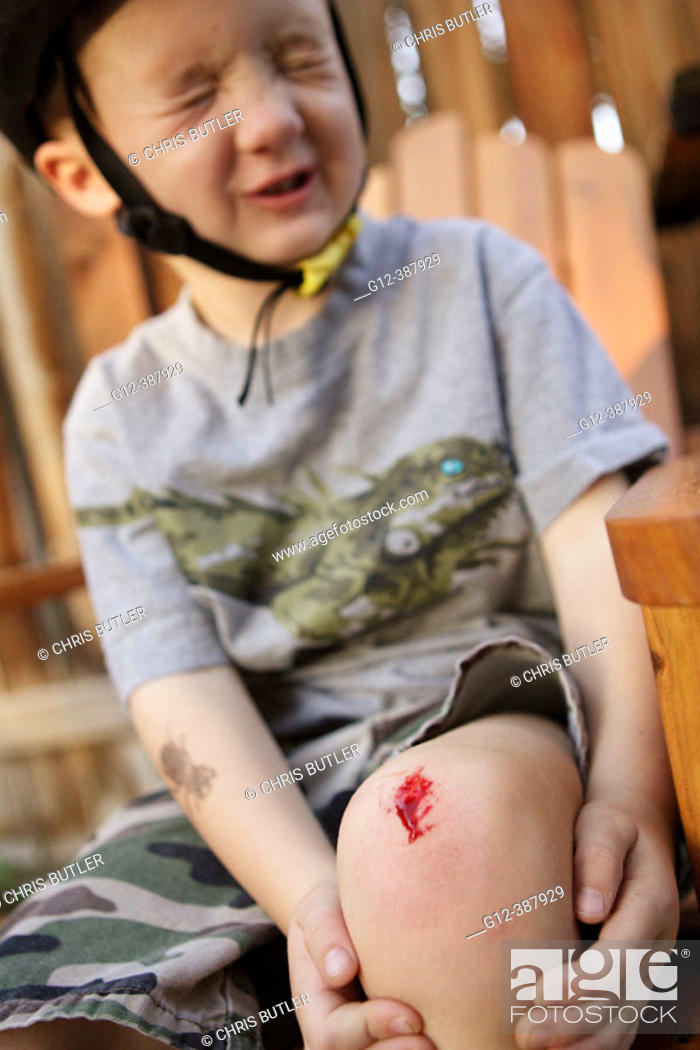 Imagen: 4 year old boy wincing after hurting knee.