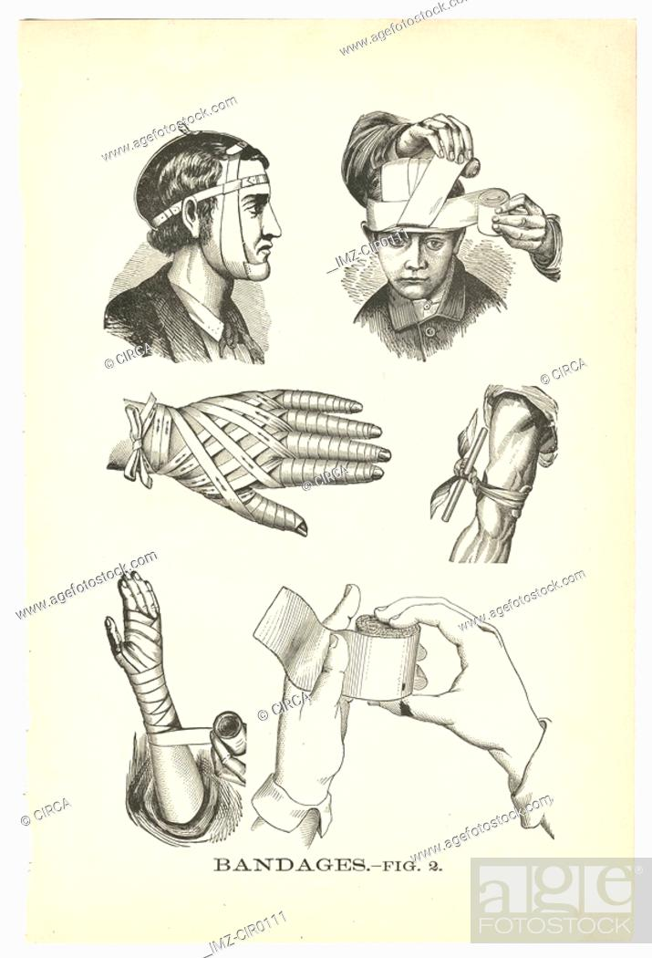 Stock Photo: A page of illustrations of bandaged injuries from a vintage book.
