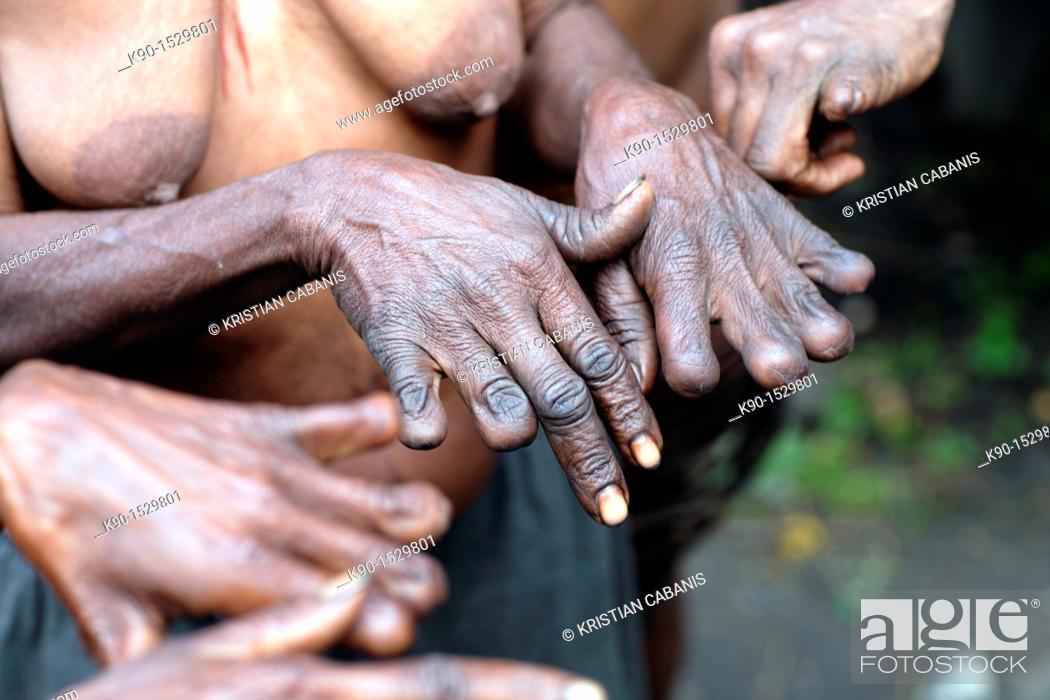Stock Photo: Local Papuan women, showing her fingers cut according to local customs, Baliem Valley festival, Jayawijaya region, Papua, Indonesia, Southeast Asian.
