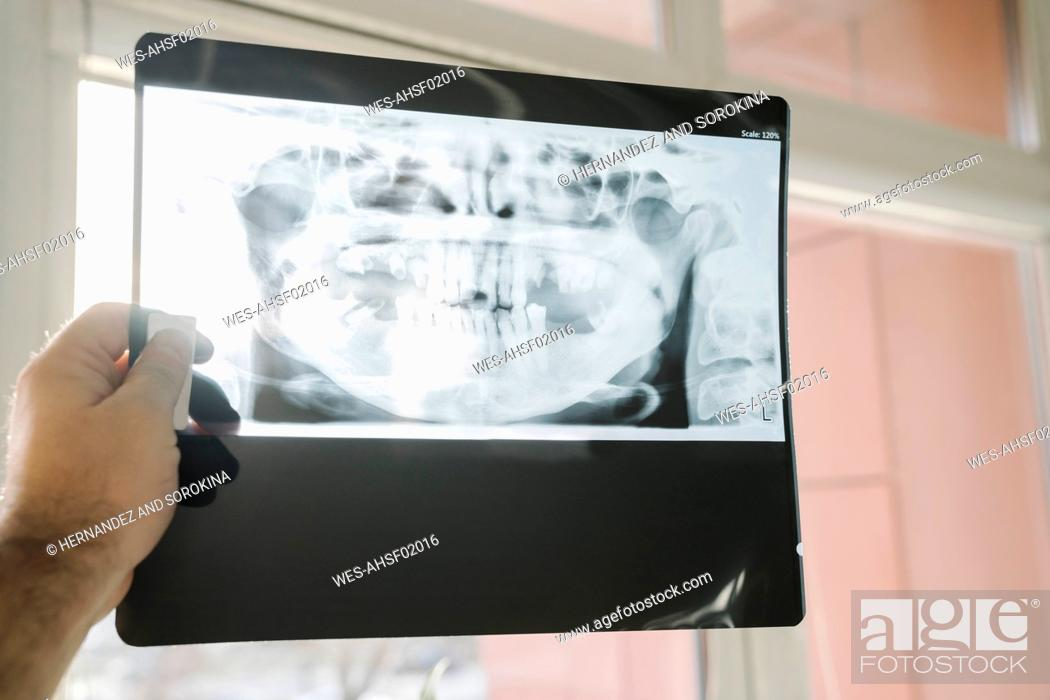 Stock Photo: Hand holding x-ray of a jaw.
