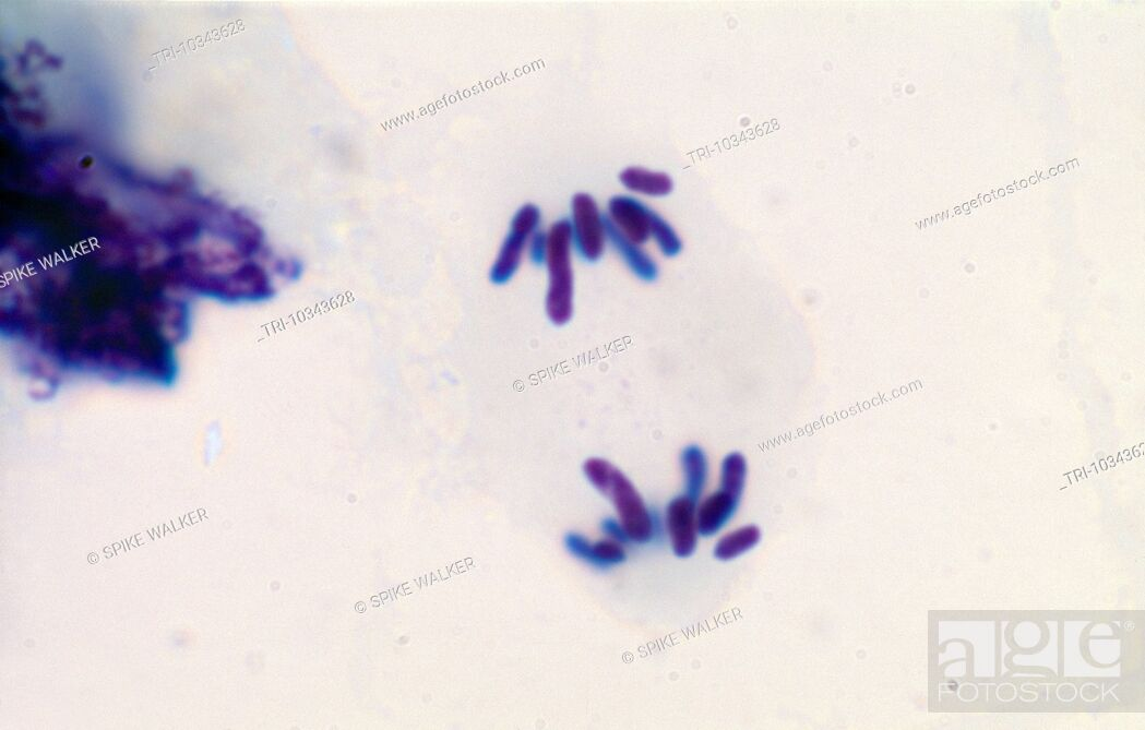 Meiosis - Locust Testis Squash Stained Haematoxylin Late Anaphase 2 ...