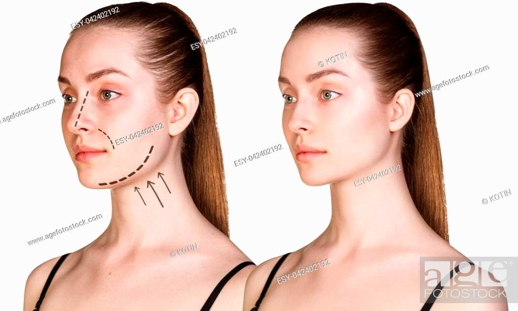 Imagen: Beautiful young woman with arrows on face. Cosmitic procedures concept.