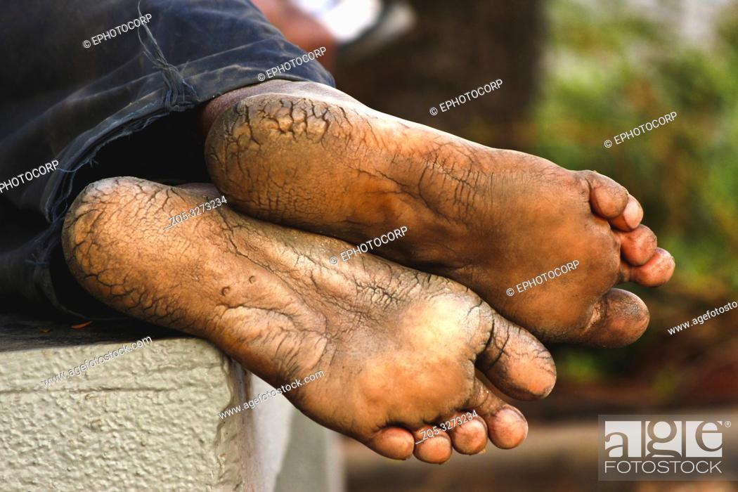 Imagen: Mans with dry and deeply cracked heels resting.