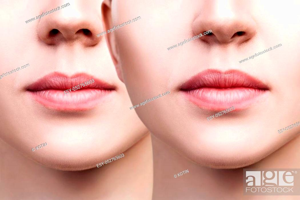 Stock Photo: Beautiful lips of young woman. Before and after lips filler injections. Fillers concept.