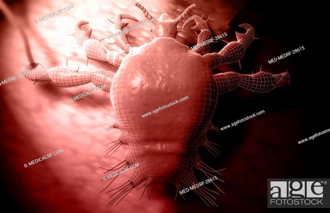 Stock Photo: Pubic louse.