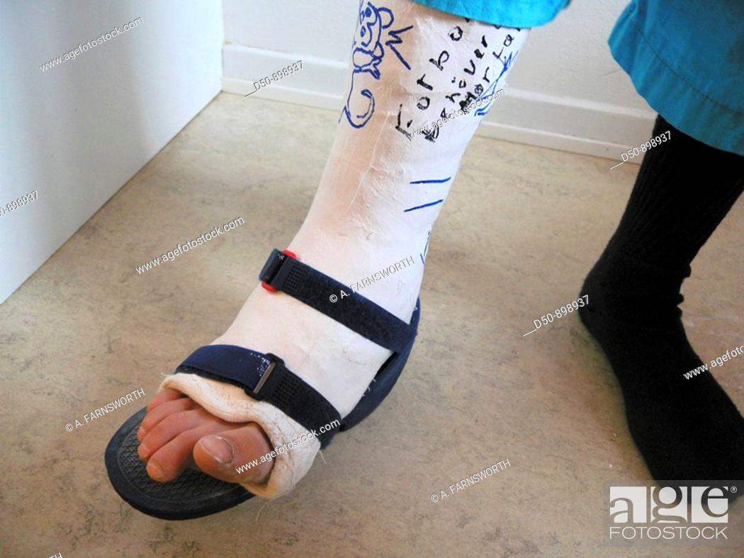 Stock Photo: Plaster cast on an eight year old boy. Broken ankle.
