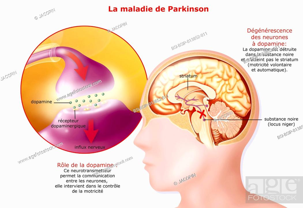 Illustration of Parkinson\'s disease. It affects dopamine neurons in ...