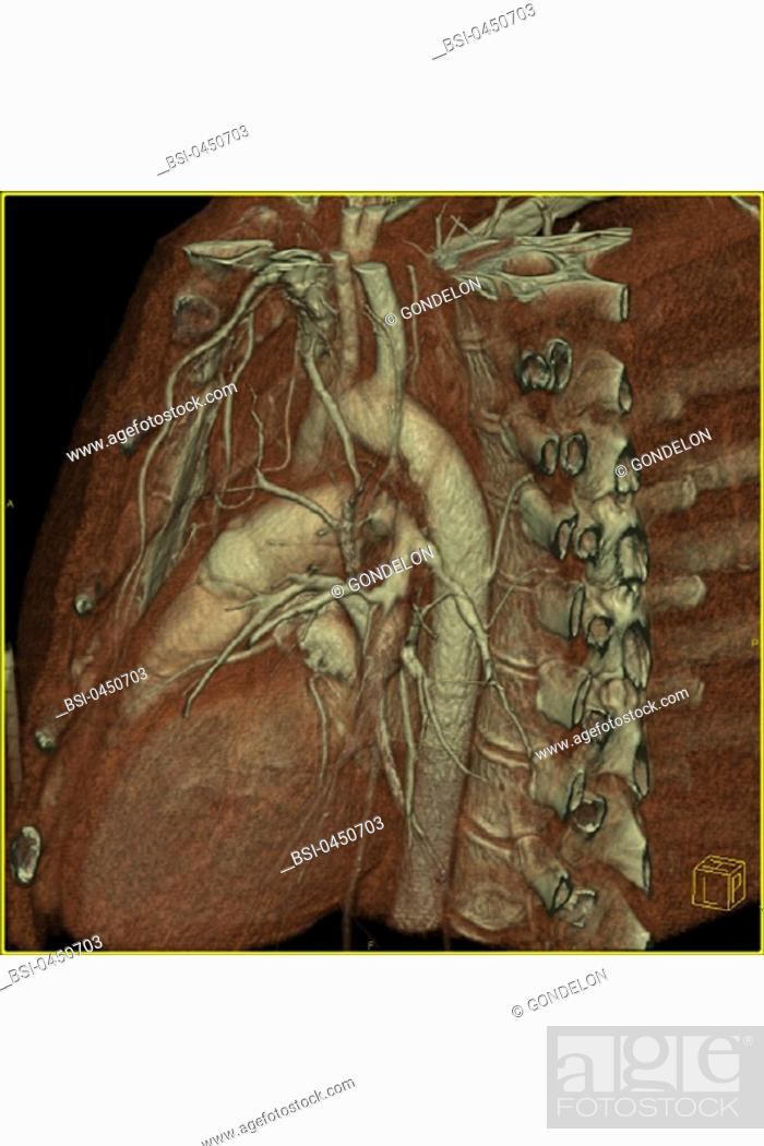 6 why is a pulmonary arterial line not an arterial line in the strictest sense of the word Pulmonary arterial hypertension is a form of high blood pressure in the lung's arteries the disease begins when tiny arteries in the lungs become narrow, blocked or destroyed causing resistance to blood to flow as the pressure builds, the heart's lower right chamber becomes overworked and.