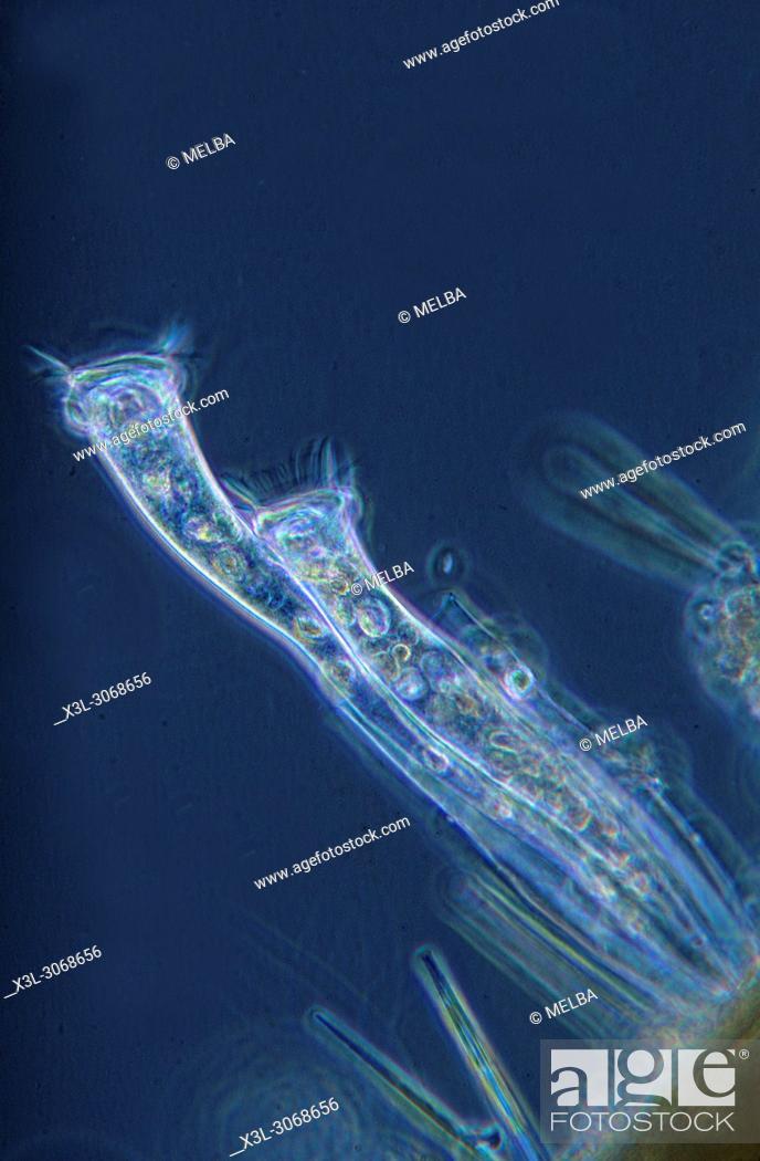 Stock Photo: Ciliata. Protozoans. Optic microscopy.