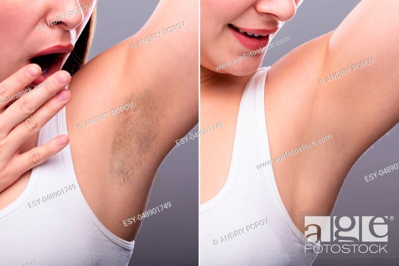 Imagen: Before And After Concept Of Woman's Underarm Hair Removal On Grey Background.