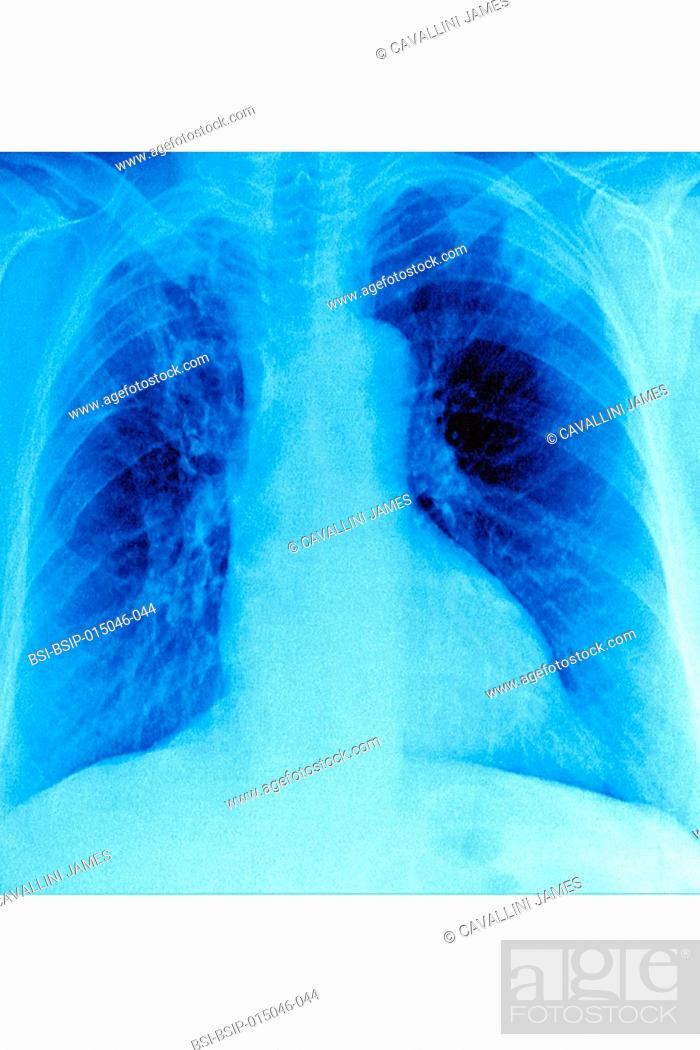Pneumonia caused by a hospital acquired bacterian infection