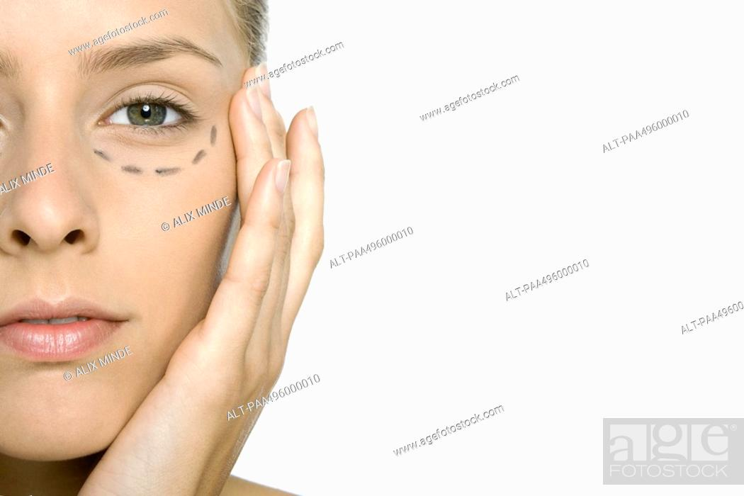 Stock Photo: Woman with plastic surgery markings under her eye, close-up, cropped.