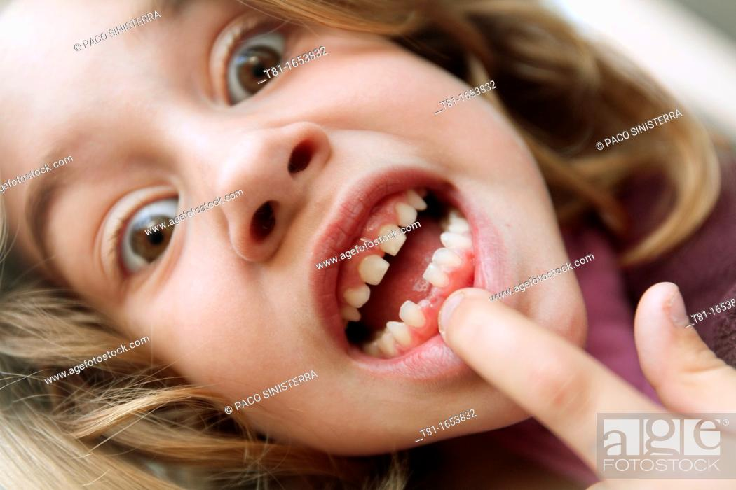 Stock Photo: Girl pointing chipped teeth,.